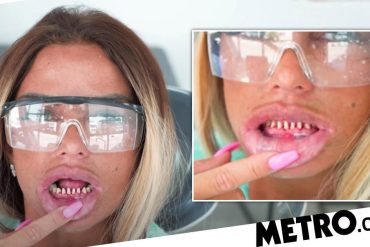 Katie Price 'panicked' as her teeth fell out before the holidays with her boyfriend