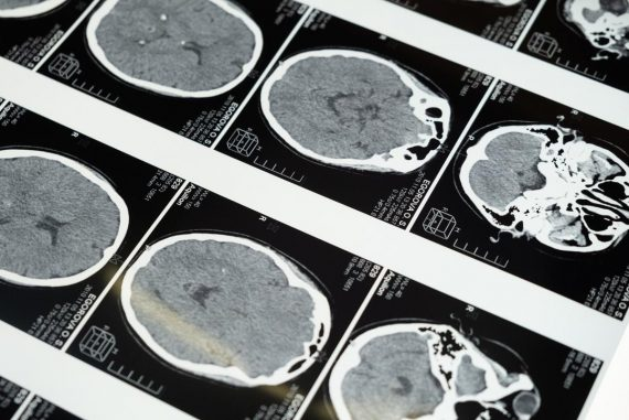 What do I do if I have epilepsy for the first time?  |  at this time