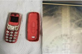 Dad!  The young man swallowed the whole Nokia 3310 phone;  The doctor was also shocked to see a scan on his abdomen
